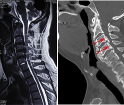 cervical-spondylisis
