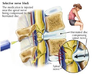 Selective nerve block