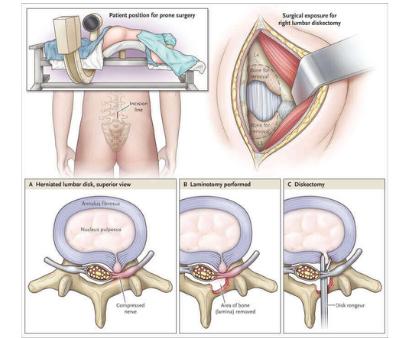microlumbar disscectomy