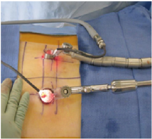 Minimal Invasive Spine Surgery (MIS) surgery