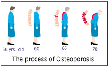 Osteoporotic Spine Fracture surgery