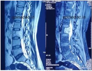 xray of Spine Tumour Surgeries